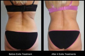 Exilis before and after 1