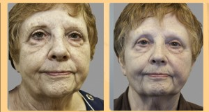 before and after Exilis