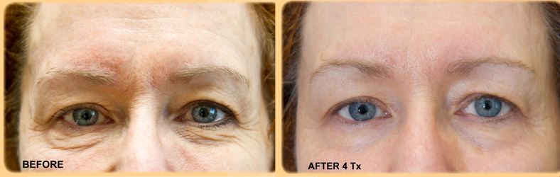 exilis-eyes-before-after