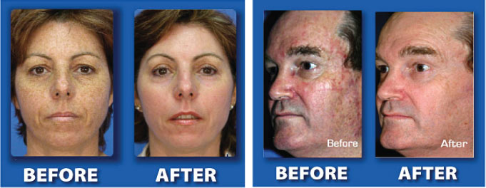 resurfacing laser radin skin centre